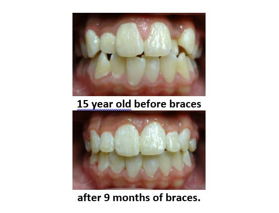 braces-before-and-after