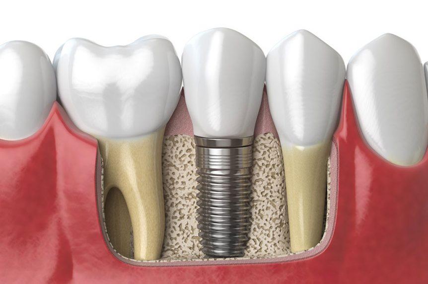 dental implants charlotte nc