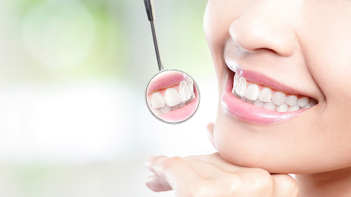 5 Ways to Keep Your Dental Implants in Great Shape