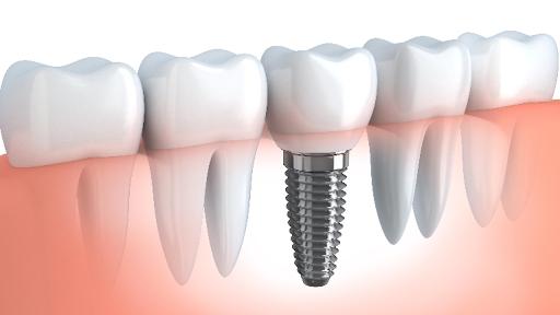 Dental Implants Indian Land and Ballantyne Charlotte