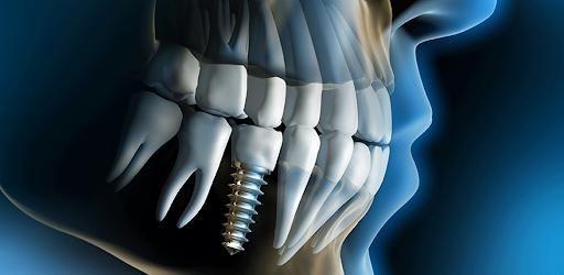 Endosteal Implants Near Ballantyne & Charlotte