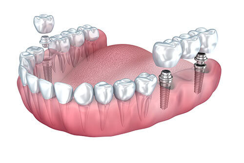 Which Type of Dental Implant is Best for Me?